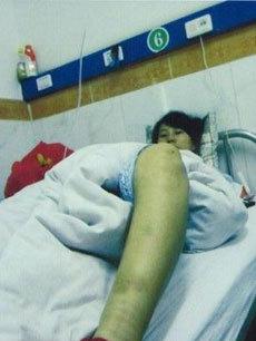 7月孕妇遭强制引产 3名地方官员已被停职图片